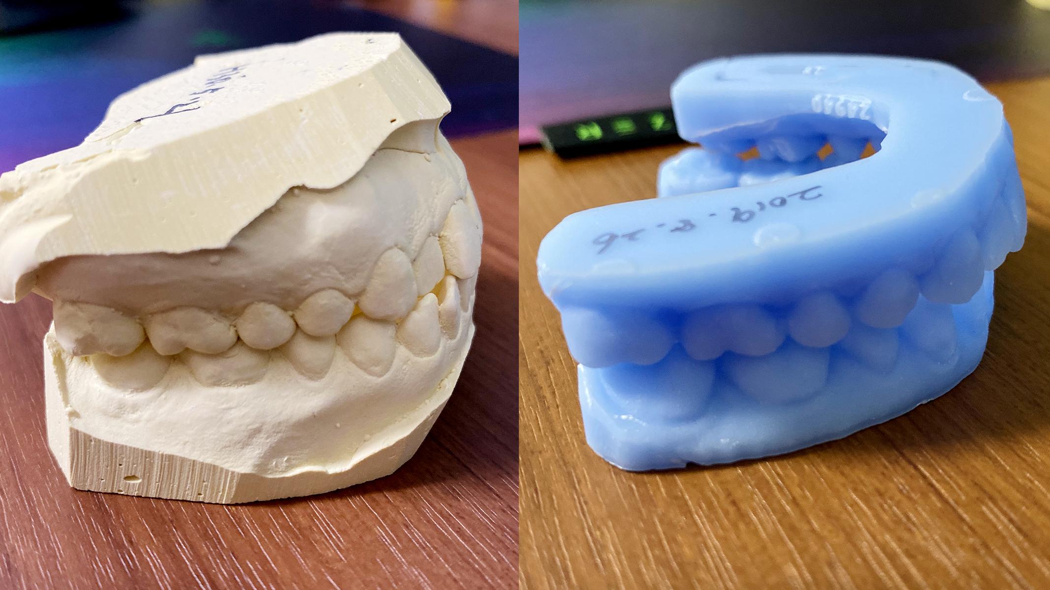 キレイ ライン 怪しい キレイラインの歯科矯正を3日で挫折した失敗談